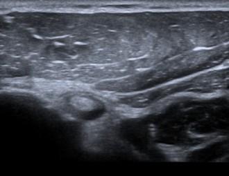 side effects of ultrasonography
