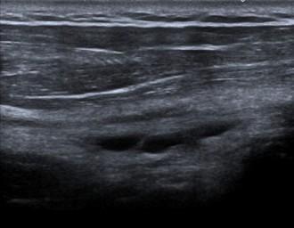 Bursitis - Überlastungsreaktion beim Sonografeur