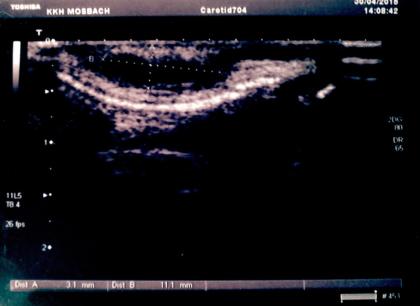 Ultraschall Ohrmuschel
